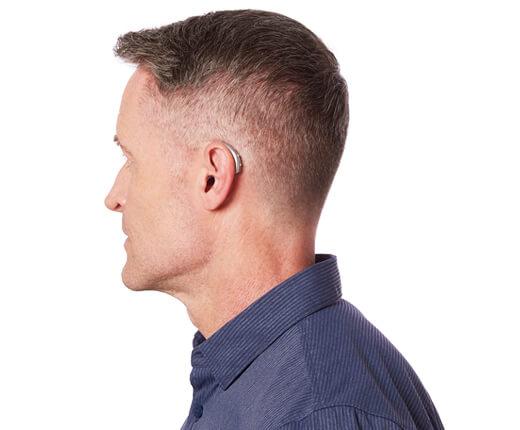 Behind-The-Ear (BTE)